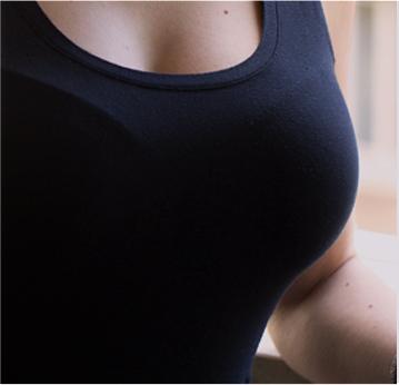 bränner i bröstet efter bröstförstoring